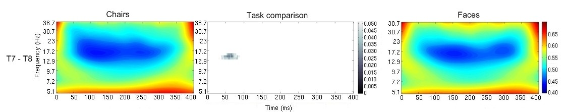 https://static-content.springer.com/image/art%3A10.1186%2F2040-2392-4-1/MediaObjects/13229_2012_Article_52_Fig4_HTML.jpg
