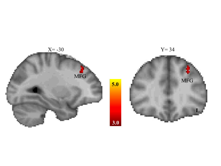 https://static-content.springer.com/image/art%3A10.1186%2F2040-2392-5-7/MediaObjects/13229_2013_Article_102_Fig4_HTML.jpg