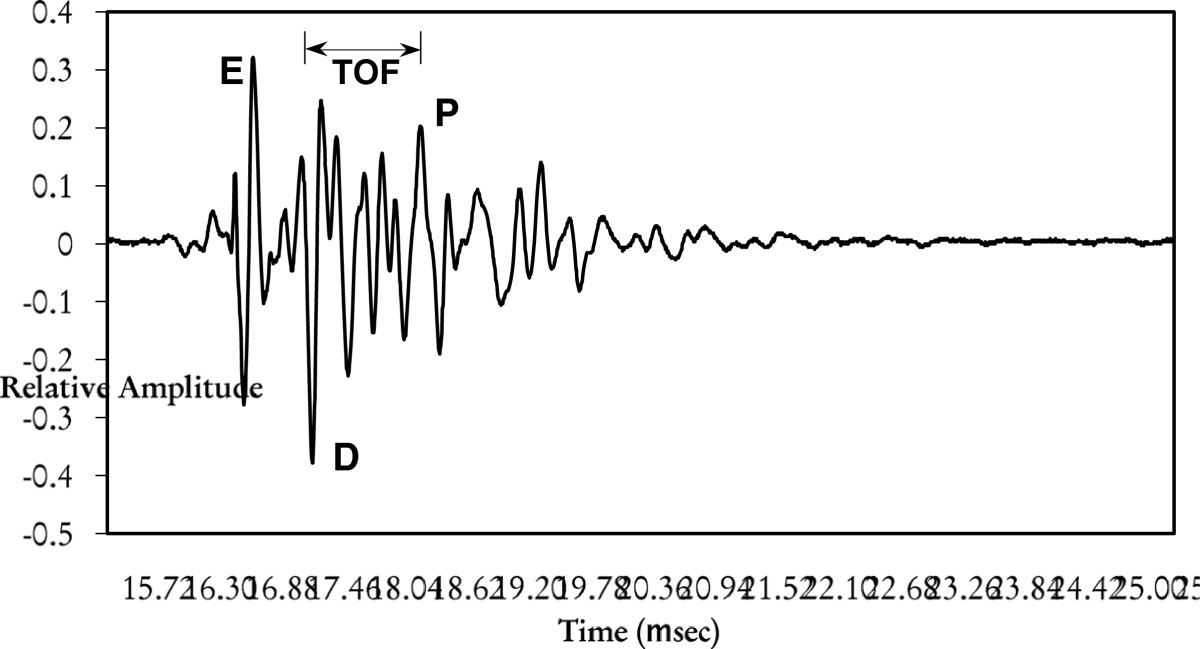 https://static-content.springer.com/image/art%3A10.1186%2F2050-5736-1-5/MediaObjects/40349_2012_Article_6_Fig4_HTML.jpg