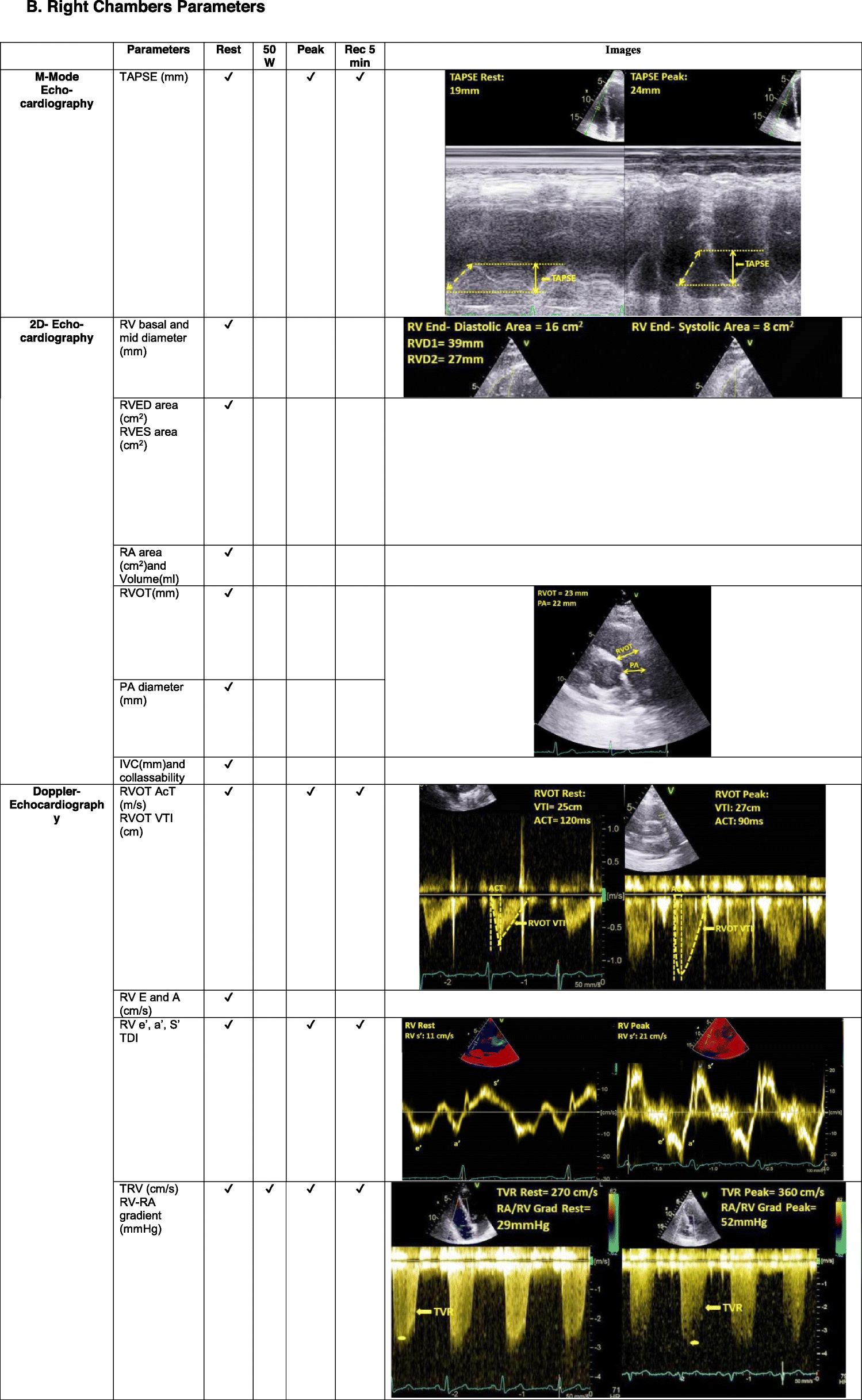 https://static-content.springer.com/image/art%3A10.1186%2Fs12947-021-00238-1/MediaObjects/12947_2021_238_Tab2b_HTML.png